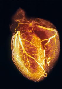 heart-angiogram-sd3453-ga